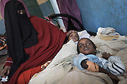 Patients are treated for Cholera at Save the Children's Cholera Treatment Center in Burao, Somaliland.