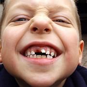 Brandweerwedstrijden om de Borssentroffee 2004 bij de  Kolonel Palmkazerne, Dennis Veerman, met tand eruit, wissellen
