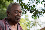 Manley Tabe patient at the Fred Hollows Foundation NZ outreach in Luganville, on the island of Santo, Vanuatu. August 2014<br /> <br /> Image James Ensing-Trussell/Topic