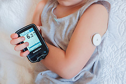 A child checks her blood sugar by scanning a FreeStyle Libre Flash Glucose sensor. The device usually worn on the upper arm, helps people with Type 1 diabetes monitor their blood sugar levels. Each sensor lasts 14 days and costs around £50. The technology is available on the NHS in some areas (depending on local approval). Photo credit should read: Katie Collins/EMPICS