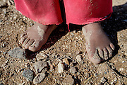 The feet of one of the youngest victims of displacement. Most young Bedouin children do not have shoes. Dec. 21, 2013. West Bank, Palestinian Territories. (Photo by Gabriel Romero/Alexia Foundation ©2014)