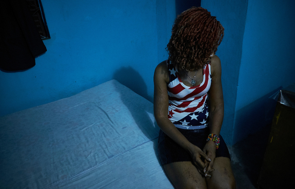 Sex worker Aicha sits on a bed at a brothel in Conakry, Guinea on March 19, 2016. MSF works in collaboration with partner Fraternit&eacute; M&eacute;dicale Guinea (FMG), an NGO that has developed strong ties in the community of sex workers. The NGO's work involves visits to sites of sex workers and counselling and referrals to medical centres in cases of health problems MSF launched a HIV testing campaign with FMG to reach this key population group. The program was undertaken in Conakry with the support of health authorities moving throughout several neighbourhoods throughout 2016. <br /> <br /> &quot;My family died in the war in Ivory Coast so I came here two years ago. I have family in Guinea because my mother is Guinean. I am a dancer and singer but to survive I started this work. It's been one year since I started working in prostitution. I can survive now with this work. I have two children, one daughter is 7 and one is 5 years old. It's my big sister that helps me to take care of the children. I thought the awareness program and the testing is a good thing, I had my test and had a result of negative which made me happy.&quot;<br /> <br /> Despite countries in West and Central Africa having a relatively low HIV prevalence (
