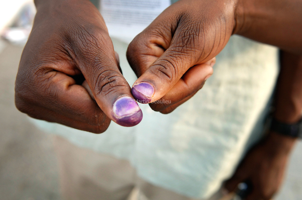 After Haitians have cast their ballot, their thumb is marked to ensure they won't vote again.