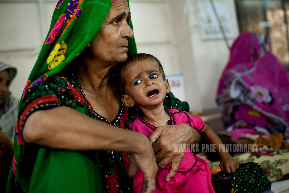 A woman holds a severely malnourished child in the nutrition stabilisation centre in Hyderabad Civil Hospital, on October 13, 2011, in Hyderabad, Pakistan. According to UN reports, hundreds of thousands of children in Pakistan suffer from severe-acute-malnutrition, with 15.1% of children experiencing acute malnutrition. Child malnutrition has breached emergency levels in Pakistan's Sindh province, after monsoon floods devastated the country's poorest region for a second year. Extreme poverty, poor diet and health, exposure to disease, and inadequate sanitation and hygiene annually produce alarming levels of malnutrition amongst children, but the floods have increasingly endangered an already vulnerable population. (Photo by Warrick Page)