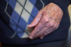 94 year old man. MR