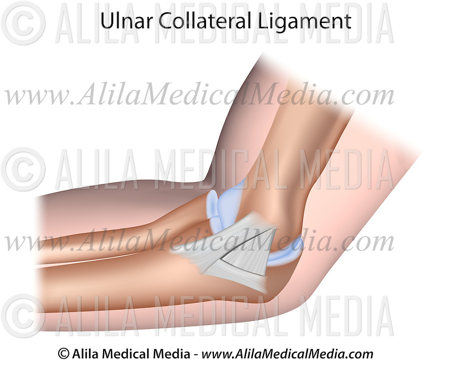 Ulnar Collateral Ligament Of Elbow Alila Medical Images