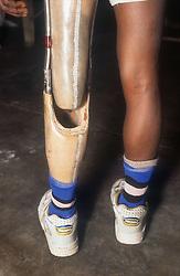Man with artificial leg at the Apahaj Ashram; Patiala; Punjab; India,