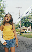 Michelle Goelle with her broken arm in plaster, Detroit, USA, 2003