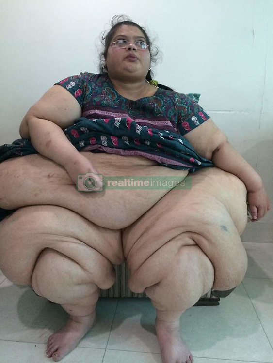 """EXCLUSIVE: **WARNING CONTAINS NUDITY**Just when Egyptian woman Eman Ahmed's drastic weight loss — from a whopping 500kg to 176kg merely in three months — and controversies around the story was making international headlines, there was another woman, pegged as of India's heaviest, who quietly underwent a second round of barbaric surgery to lose further weight at a private hospital in Mumbai. Amita Rajani, the 44-year-old resident of Vasai, weighed around 300kg and was bed-ridden for around nine years. She lost 165kg in two years. After second operation, she has lost 10kg in one month. Doctors say she will be 70 by next April. """"Bariatric surgery has given me a new lease of life,"""" said Amita after her second surgery at Laparo Obeso Centre in Mumbai on April 02. More than a month after the second operation, she now weighs 125kg. """"My life has changed drastically. Until 2015, I was confined to my bedroom for almost eight years as I could barely walk a few steps. Now, I can walk a few kilometers at a stretch, drive my car to work, go out shopping. I have literally got my life back. Now, I walk for at least 2km daily, earlier I needed help to turn from one side to another in the bed. The obesity had ruined my personal, professional and social life. Whenever I want I take out my car, go for a long drive or go meet my relatives and friends and wedding and birthday parties,"""" said Amita, who works as a share trader, adding that her friends have organized a reunion to celebrate her transformation. Amita's weight gain, however, did not happen suddenly. It happened over the years. Amita was 116kg when she was in class 10. """"In 2007, we consulted doctors in UK but since I was born with a single kidney, they said it would be a high-risk surgery,"""" said the lady who once ran a small soft toy factory in the city. Until 2015, Amita needed four to five people to help her stand. """"Today, I step out of home every day and my mother teases me about it.'' Amita kept gaining weight t"""