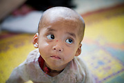 "23 FEBRUARY 2008 -- MAE SOT, TAK, THAILAND: So Pai, a two year old Karen boy weighing about 13 pounds, waits for treatment for malnutrition at the Mae Tao Clinic in Mae Sot, Thailand. His family lives in Burma and had to travel more than six hours to bring the child to the clinic. The clinic treated more than 80,000 people in 2007, all Burmese. Most of them are living illegally in Thailand, but many come to the clinic from Burma because they either can't afford medical care in Burma or because it isn't available to them. There are millions of Burmese refugees living in Thailand. Many live in refugee camps along the Thai-Burma (Myanmar) border, but most live in Thailand as illegal immigrants. They don't have papers and can not live, work or travel in Thailand but they do so ""under the radar"" by either avoiding Thai officials or paying bribes to stay in the country. Most have fled political persecution in Burma but many are simply in search of a better life and greater economic opportunity.  Photo by Jack Kurtz"