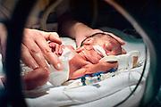 Nederland, Nijmegen, 19-4-2007Te vroeg geboren kind op afdeling neonatologie.Patient op intensive care.Foto: Flip Franssen