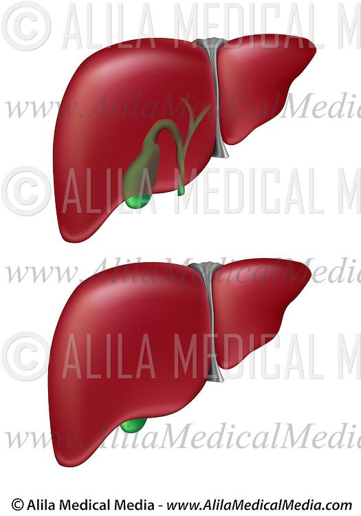 Liver and gallbladder | Alila Medical Images