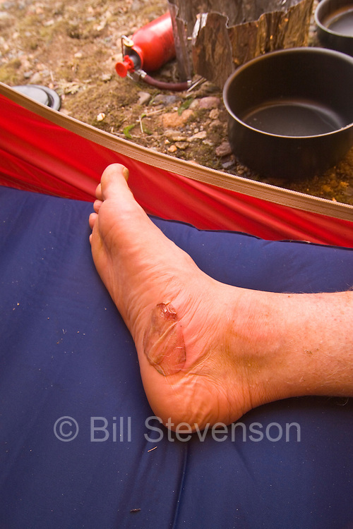 I got a little blister on this hike.