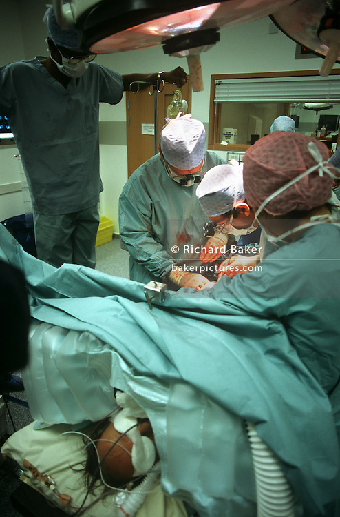 Surgeons performs open heart surgery during a procedure at the private Health Care International hospital.