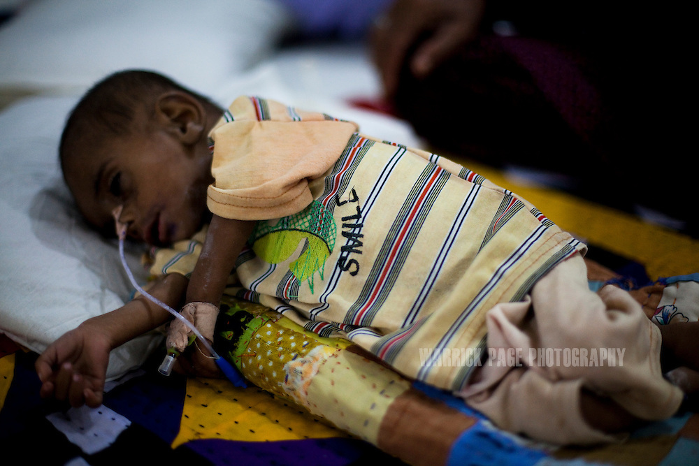 A baby lies semiconscious in the nutrition stabilisation centre in Jamsharoo Civil Hospital, on October 13, 2011, in Jamsharoo, Pakistan. According to UN reports, hundreds of thousands of children in Pakistan suffer from severe-acute-malnutrition, with 15.1% of children experiencing acute malnutrition. Child malnutrition has breached emergency levels in Pakistan's Sindh province, after monsoon floods devastated the country's poorest region for a second year. Extreme poverty, poor diet and health, exposure to disease, and inadequate sanitation and hygiene annually produce alarming levels of malnutrition amongst children, but the floods have increasingly endangered an already vulnerable population. (Photo by Warrick Page)