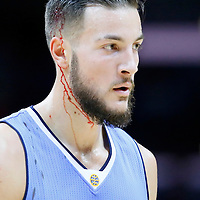 02 October 2015: Denver Nuggets forward Joffrey Lauvergne (77) is seen bleeding during the Los Angeles Clippers 103-96 victory over the Denver Nuggets, in a preseason game, at the Staples Center, Los Angeles, California, USA.