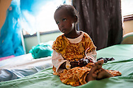 A young girl is treated in the malnourishment ward at Kenya's Dadaab Refugee Camp, situated northeast of the capital Nairobi near the Somali border, August 2011.