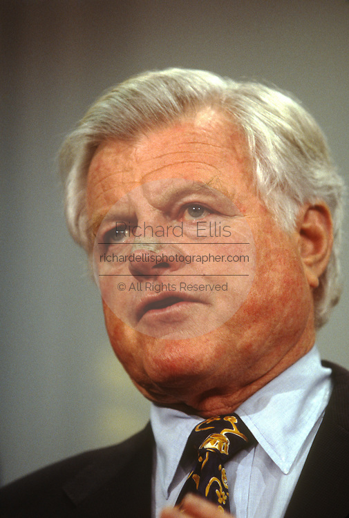 Senator Ted Kennedy has a bandage on his nose following the removal of skin cancer during a press conference on Capitol Hill December 28, 1996 in Washington, DC.