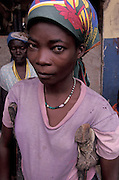 ANGOLA: Benguela Province.An IDP with polio