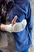 bandaged broken hand in a cast