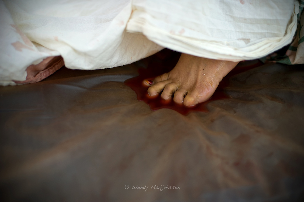 A woman's toes dip into a pool of her own of blood during a miscarriage in a government Hospital. Many of the maternal deaths happen due to untimely referral to hospitals in case of complications and continued bleeding. Karachi, Pakistan 2010