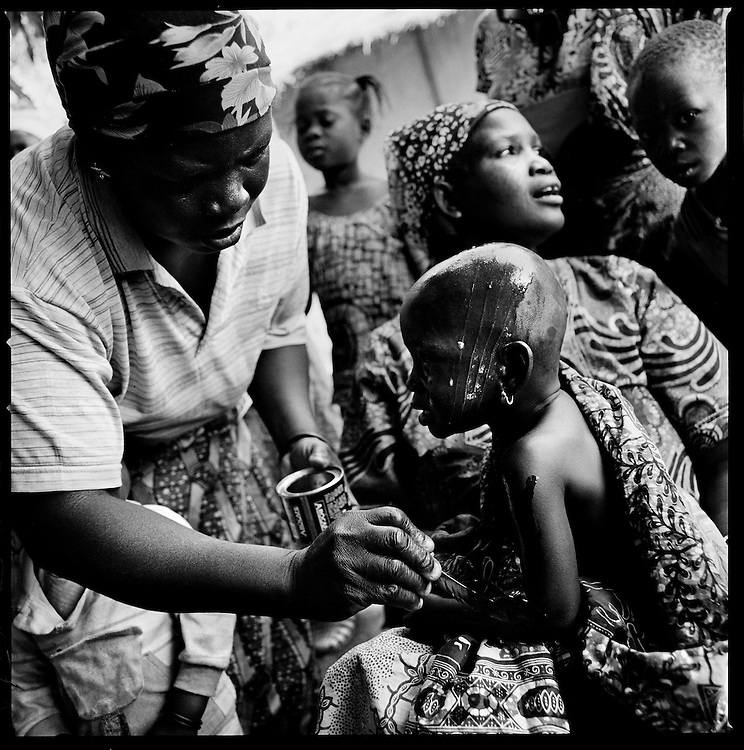 Benin - January 2009 - The ceremony have a process of initiation is of great social importance and the rites of the ritual have special symbolic meanings. Scarification is used as a form of initiation into adulthood, beauty and a sign of a village, tribe, and clan. ©Jean-Michel Clajot