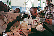 A Somalian child recovering in the hospital after being blinded and injured while playing with a landmine in Hargeisa, capital of Somaliland. The three leading causes of death in Somalia are gastro-enteritis, T.B. and trauma, mostly from land mines, gun shots, and car accidents. Somaliland is the breakaway republic in northern Somalia that declared independence in 1991 after 50,000 died in civil war. March 1992.