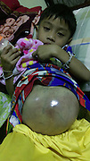 BOY WITH FOOTBALL-SIZED TUMOUR IN HIS TUMMY<br /> <br /> This four-year-old boy gets teased because he looks like he's pregnant - but it's actually a giant tumour in his TUMMY.<br /> <br /> Kittipat Jintana has had the painful cancerous growth in his stomach since he was just one-and-a-half years old. <br /> <br /> Despite having medical treatment, the tumour has continued to grow and is now almost as big as a football.<br /> <br /> Harrowing pictures show the extent of the cancer - and Kittipat is no longer able to stand up or go to the toilet properly.<br /> <br /> Relatives have now made a desperate plea for doctors that can help as his cancer is now stage three with fears that it could spread further.<br /> <br /> Family friend Pensiri Saenghiran said: ''His parents are no longer together and he has to live with his aunty. He wasn't abandoned by them, but they have a lot of problems so can't take care of him fully.<br /> <br /> ''We look after him, too. He's desperately in need of proper medical attention. Other children call him pregnant but they don't know how sick he is.''<br /> <br /> Kittipat developed the growth almost three years ago. He's now four years and four months old - and the condition has continued to get gradually worse.<br /> <br /> Thailand's heavily privatised health care system means that effective treatment can cost tens of thousands of pounds. <br /> <br /> While in government hospitals patients such as Kittipat can be left to deteriorate unless they have money to spend on care.<br /> <br /> Pensiri added: ''We have been taking Kittipat to hospital but his condition is getting worse. He is really ill and we're hoping for an expert doctor or consultant who can help him.''<br /> ©Exclusivepix Media