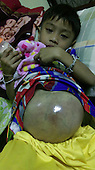 BOY WITH FOOTBALL SIZED TUMOUR IN HIS TUMMY3