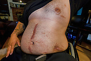Ramirez shows the damage caused by two gunmen in the 2007 shooting. Oxnard, Calif. (photo by Gabriel Romero ©2011)