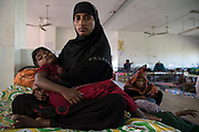 Rohingya refugee crisis. Setara Begum (25) comforts Ajida, who was injured by a fall while escaping the attack on their village. Survivors of the violence in Myanmar. Her husband was killed by Myanmar soldiers. Sadar Hospital in Cox's Bazar, Bangladesh - Photograph by David Dare Parker