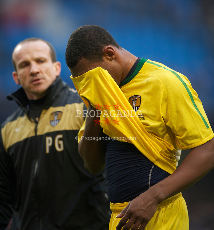MANCHESTER, ENGLAND - Sunday, February 20, 2011: Notts County's Krystian Pearce is treated for a head injury during the FA Cup 4th Round Replay match against Manchester City at the City of Manchester Stadium. (Photo by David Rawcliffe/Propaganda)
