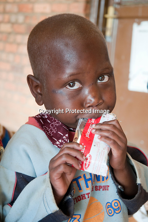 "A child eats Plumpy Nut at a Partners In Health supported malnutrition clinic in Butaro health center in northern Rwanda. Rwanda has a universal health insurance  ""Mutuelles de Sante"" . Rwandans pay only two dollars($2) a year for health insurance. The cost to see a nurse at a health center is $ .50 US cents."