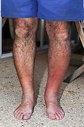 Erysipelas on leg. Close-up of swollen & inflamed skin of a young man. This is due to erysipelas, an acute infection of the skin & subcutaneous tissue. This infection is caused by the Streptococcus pyogenes bacterium invading tissues via a sore or wound. The disorder starts abruptly with fever, headaches & vomiting. Itchy red patches (erythema) appear on the skin. Within the inflamed area, pimples develop that blister then burst and crust over. Treatment is with penicillin (antibiotic drug).