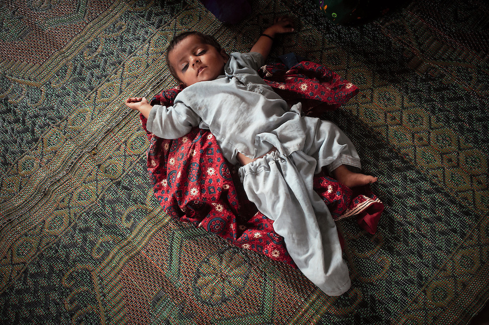 Baby Alsan Ismael, 12 months old at the government health clinic in the remote village of Misribaran, Thatta, Sindh, Pakistan on July 2, 2011.  He is being treated for malnourishment.