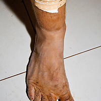 Foot after 15 hour mud & water spa treatment.