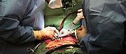 Nederland, Nijmegen, 15-5-2003..Hartoperatie in het UMC-Radboud ziekenhuis...Foto: Flip Franssen