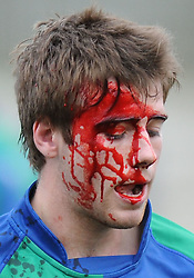 Boroughmuir winger Harris Jones leaves the field late in the game with a nasty cut to the head as blood pours from his injury.Boroughmuir v Ayr, Premiership 1, Meggetland, Edinburgh, Scotland, Saturday, 2nd October 2010.