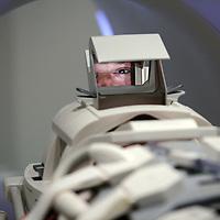 Nederland, Alkmaar , 7 oktober 2009. .Het Medisch Centrum Alkmaar (MCA) neemt vanaf september als eerste ziekenhuis in Noord-Holland 24 uur per dag patiënten op die een TIA hebben gehad..Bij een TIA (Transient Ischaemic Attack) krijgt een deel van de hersenen tijdelijk te weinig bloed, waardoor sommige hersencellen een moment minder goed of helemaal niet werken..Volgens MCA-neuroloog Majid Aramideh is het heel belangrijk dat patiënten direct de huisarts bellen wanneer zich uitvalsverschijnselen voordoen...Op de foto patient die via spiegeltje kan kijken tijdens de hersenscan..24 hours a day the Medical Center Alkmaar (MCA) is the first hospital is taking in  patients who have had a TIA.
