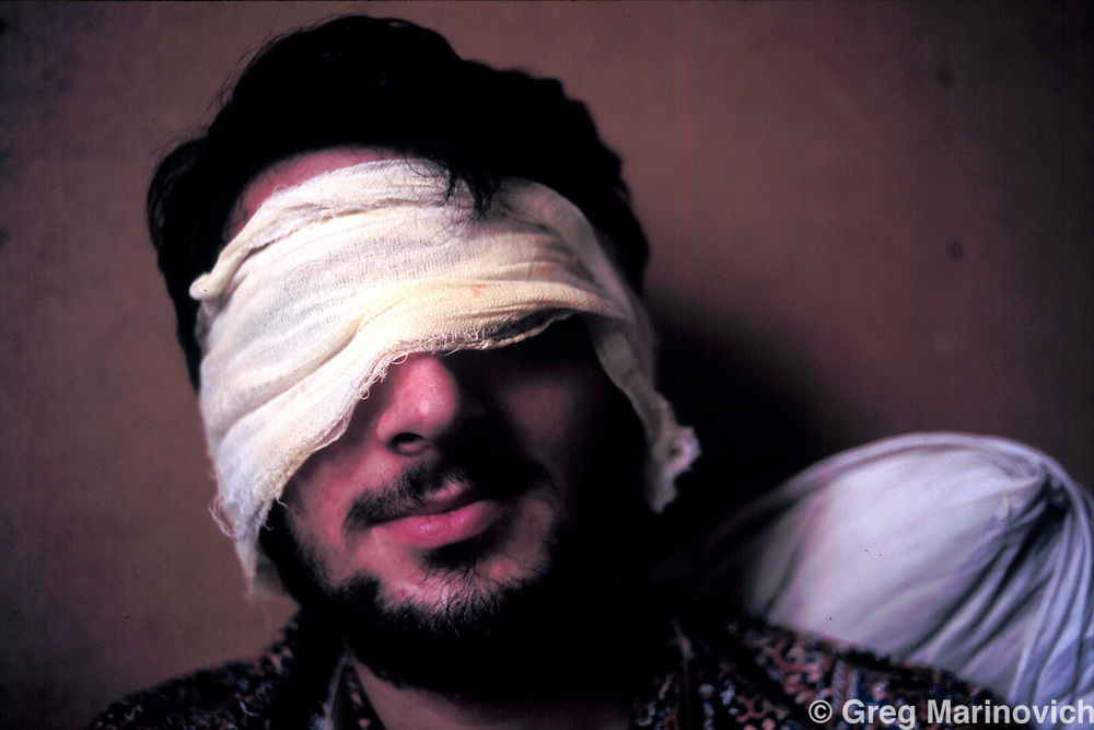 ISLAM MILITANT CHECHNYA JUL 1995: A Chechen fighter who lost his eyes in a hospital in the liberated zone of south Chechnya, July 1995.  Russia agreed to grant them autonomy after Chechens retook several towns and the capital Grozny in 1995, after a bloody war for Chechen independence.  The Chechens are Moslem and have a strong sense of national identity.  Their fight for independence from Russia has increased an Islamic militancy and  identity.  (Photo by Greg Marinovich / Getty Images)