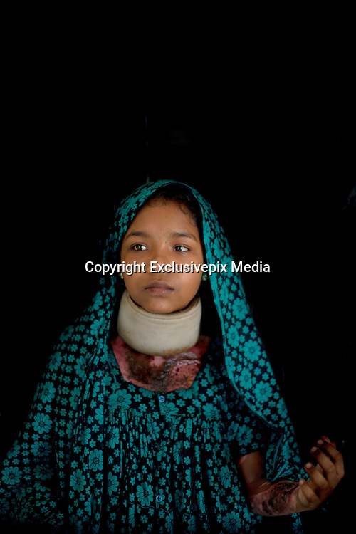 Narayanganj, Bangladesh - <br /> <br /> Acid Attack<br /> <br /> Acid throwing, also called an acid attack or vitriolage, is a form of violent assault. It is defined as the act of throwing acid onto the body of a person &quot;with the intention to disfigure, maim, torture, or kill.&sbquo;&Auml;&ugrave; Perpetrators of these attacks throw acid at their victims, usually at their faces, burning them, and damaging skin tissue, often exposing and sometimes dissolving the bones. The long term consequences of these attacks include blindness and permanent scarring of the face and body, along with far-reaching social, psychological, and economic difficulties. These attacks are most common in Cambodia, Afghanistan, India, Bangladesh, Pakistan. Globally, at least 1500 people in 20 countries are attacked in this way yearly, 80% of whom are female and somewhere between 40% and 70% under 18 years of age.<br /> <br /> Acid violence is a particularly vicious and damaging form of assualt in Bangladesh where acid is thrown in people&sbquo; faces. The overwhelming majority of the victims are women, and many of them are below 18 years of age. The victims are attacked for many reasons. In some cases it is because a young girl or women has spurned the sexual advances of a male or either she or her parents have rejected a proposal of marriage. Recently, however, there have been acid attacks on children, older women and also men. These attacks are often the result of family and land dispute, dowry demands or a desire for revenge.<br /> <br /> But the scars left by acid are not just skin deep. In addition to the inevitable psychological trauma, some survivors also face social isolation and ostracism that further damage their self-esteem and seriously undermine their professional and personal futures. Women who have survived acid attacks have great difficulty in finding work and, if unmarried (as many victims tend to be), have very little chance of ever getting married. In a country like Ban