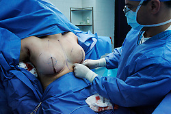 A woman gets breast implants. Plastic surgery is fairly common in Venezuela.  Men, women and people from all economic backgrounds splurge to reshape their body.  Venezuela is one of the cheapest countries in the world for plastic surgery so it attracts patients from all over the world. Fashion and looking good are top priorities in Venezuela, where there is a general culture of beauty.