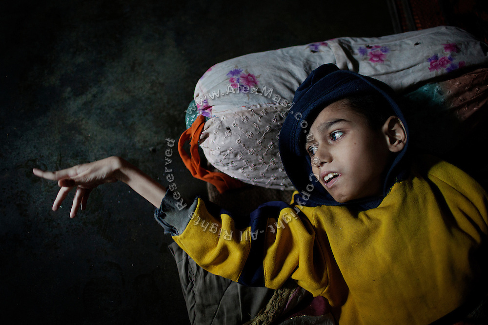 Samir, 14, a severely disabled boy, is pointing his finger towards the light, indicating to his mother that he wishes to be taken outside, while in his home in Kasi Camp, one of the water-affected colonies near the abandoned Union Carbide (now DOW Chemical) industrial complex in Bhopal, Madhya Pradesh, central India.