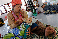 A woman uses a syringe to feed her ill child at Mae Tao Clinic, on December 20 of 2006, in Mae Sot area, Thailand. Parents need to stay in the clinic to help with their baby's care. .The Mae Tao Clinic was founded on 1988 by Dr. Cynthia Maung and gives medical care for migrant and refugees, fleeing Burma, in the Mae Sot area, Thailand..Burma has since 1962 been ruled by dictator Burman Regimes. Pro democrats and minority ethnics have since been object of human rights abuses and armed minority groups has appeared, bringing a state of Civil War..This has forced Burmese people to flee their villages and on their arrival to Thailand many suffer from malnutrition, illnesses and injuries, amputations from land-mines or traumas. The Mae Tao Clinic supported by donors and volunteers provides with free health care and treatment to these people.