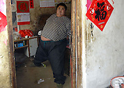 RIZHAO, CHINA - APRIL 14: (CHINA OUT) <br /> <br /> 300kg Man Is Hospitalized For Multiple Organ Failure<br /> <br />  22-year-old Sun Liang, more than 300 kg in weight, is seen at home on April 9, 2014 in Rizhao, Shandong Province of China. Sun Liang was hospitalized for multiple organ failure on April 9. Sun suddenly started to grow at the age of 19. He gained 150kg to more than 300kg in following three years.<br /> ©Exclusivepix
