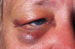 Closeup of woman's face with black eye,