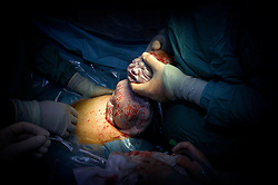 Caesarean section birth at Kettering Hospital, Northamptonshire, UK.