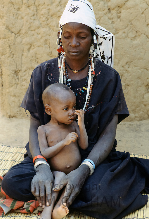 Woman and malnourished child at Save the Children Fund hospital clinic in Upper Volta, now named Burkina Faso