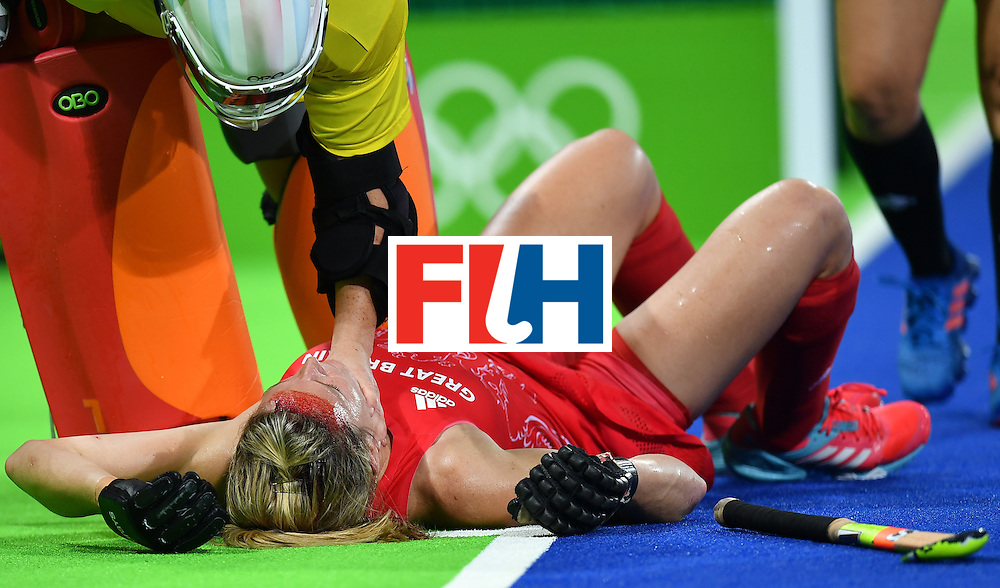 Britain's Crista Cullen bleeds as she lies on the field after resulting injuried during the women's semifinal field hockey New Zealand vs Britain match of the Rio 2016 Olympics Games at the Olympic Hockey Centre in Rio de Janeiro on August 17, 2016. / AFP / MANAN VATSYAYANA        (Photo credit should read MANAN VATSYAYANA/AFP/Getty Images)