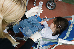 Physically disabled child being fed using enteral feeding equipment,